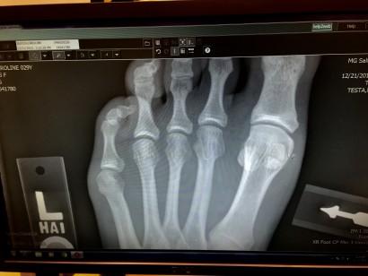 broken sesamoid :-(