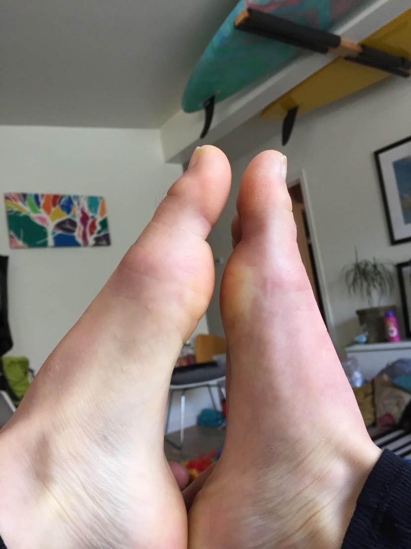Swollen Left foot.